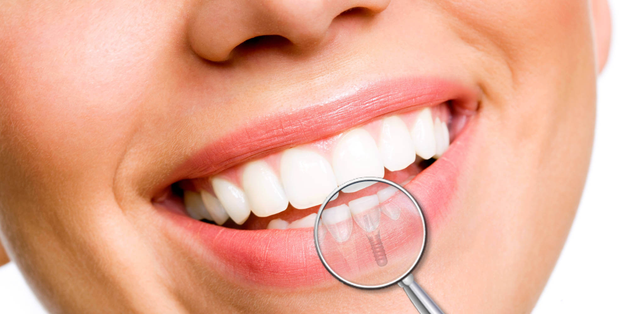 beneficios implantes dentales